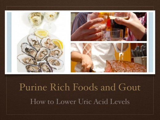 doctor for gout treatment what food to avoid if you have high uric acid what are the food contain uric acid