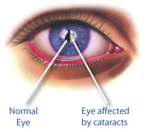 causes, symptoms and prevention of cataract
