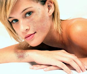 Natural Ways To Remove Pigmentation On Face