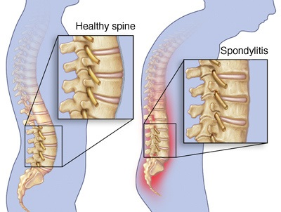 Home Remedies For Spondylosis