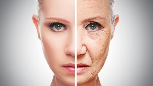 Signs of Aging