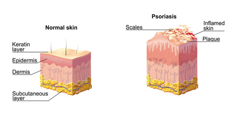 Normal skin and Psoriasis