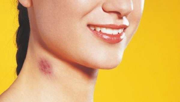How To Get Rid Of A Hickey Inlife Healthcare