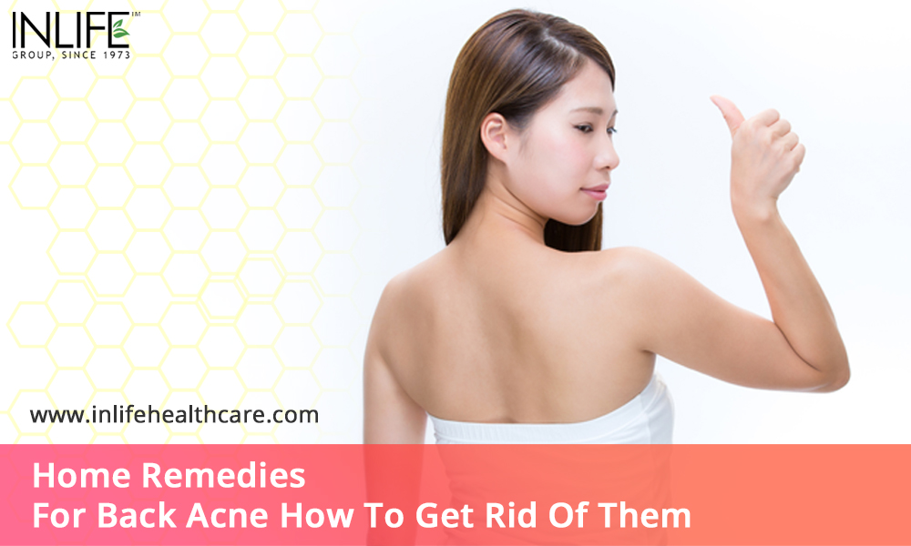 Home Remedies For Back Acne How To Get Rid Of Them