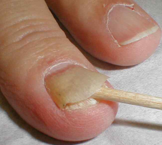 How Fungus Can Cause Nail Separation? | Inlife Healthcare