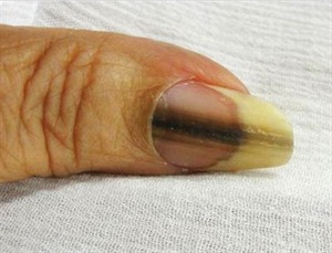 Brown Spots On Your Nails This Is What It Means