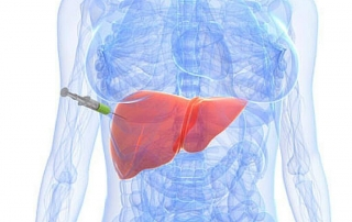 What Are Liver Function Tests and When Should You Get One