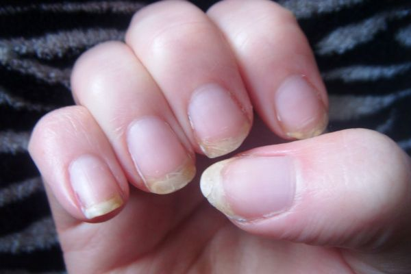 Dry, Brittle or Cracked Nails