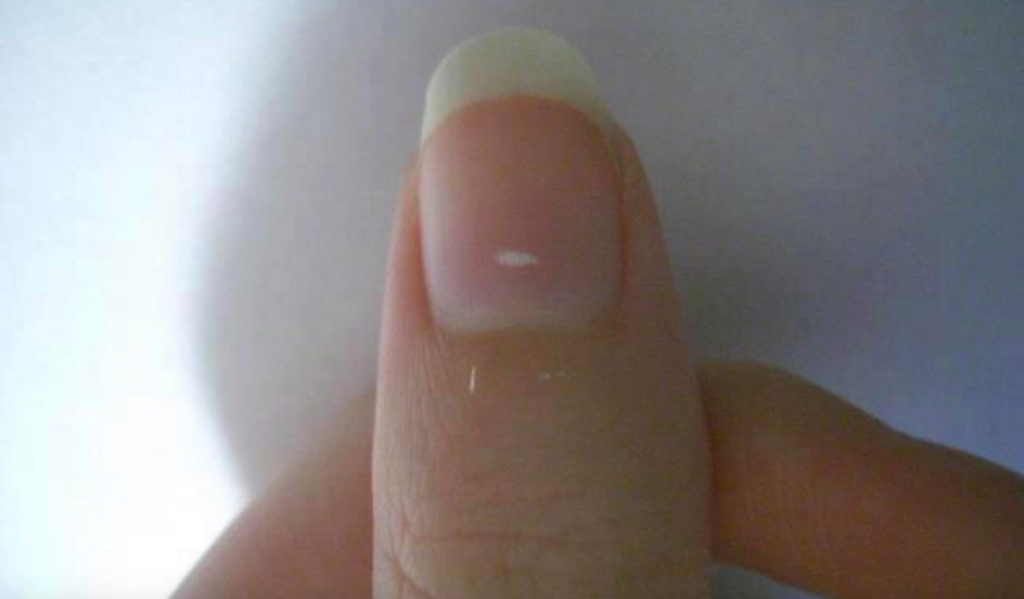White Spots in nails