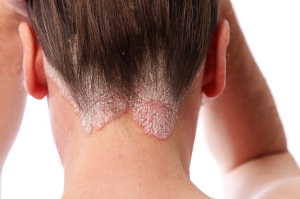 Types of Psoriasis and its triggers and symptoms.