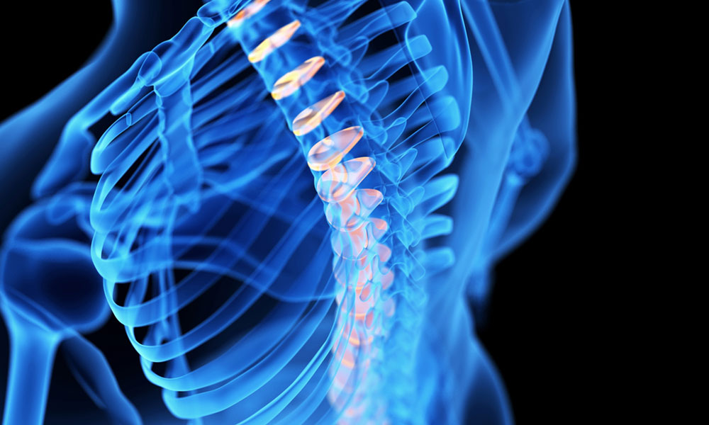 Is a healthy spine crucial to combat your back pain?