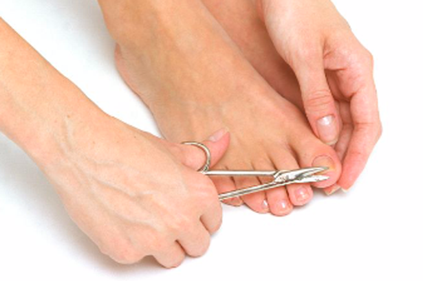 Clip your fingernails and toenails regularly