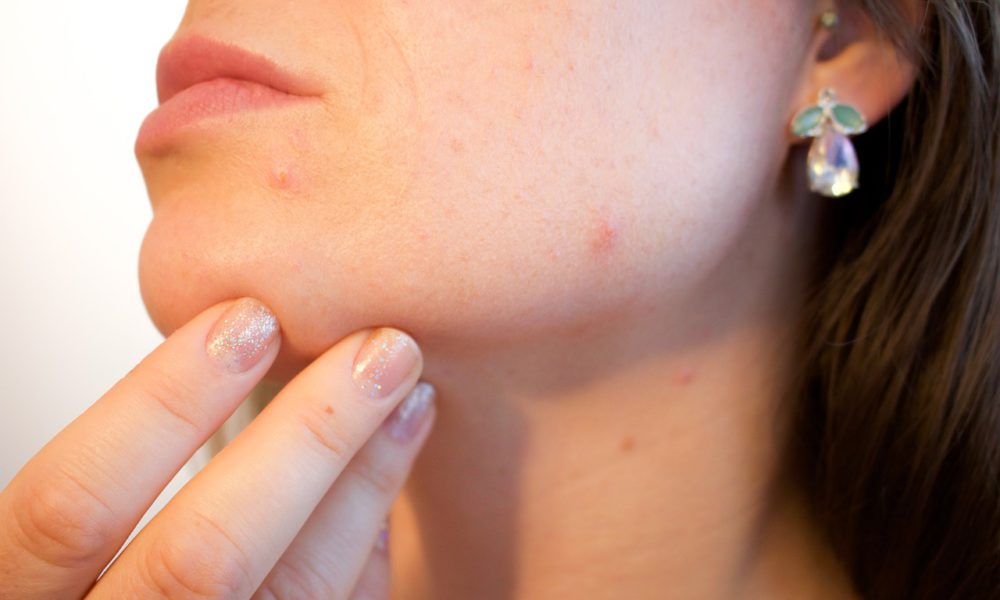 Acne On Your Neck? Here Are The Reasons