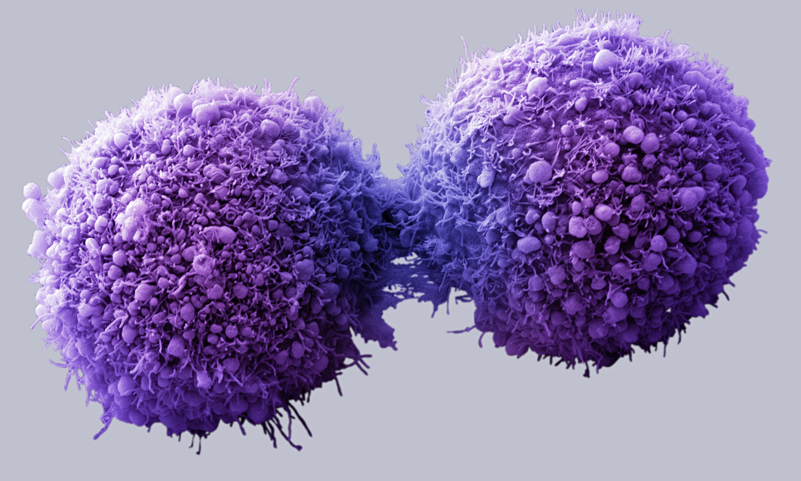 The Major Types Of Cancer And Their Treatments