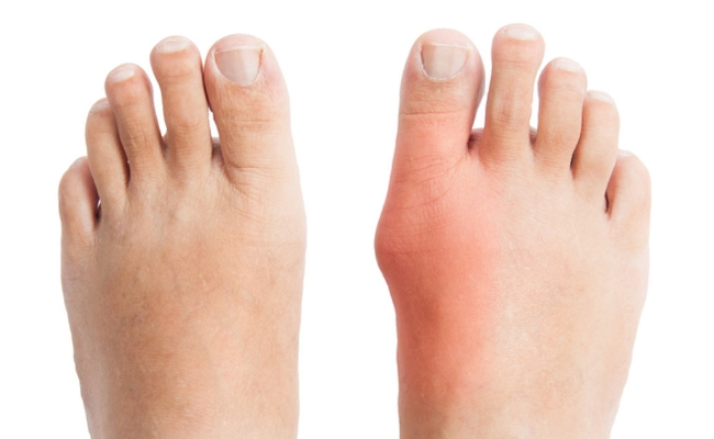 Home remedies for bunion removal