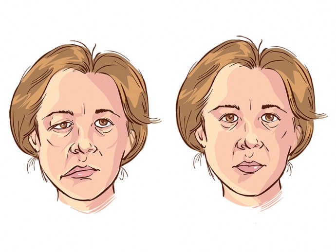 Bell's palsy – What do you know about this condition?