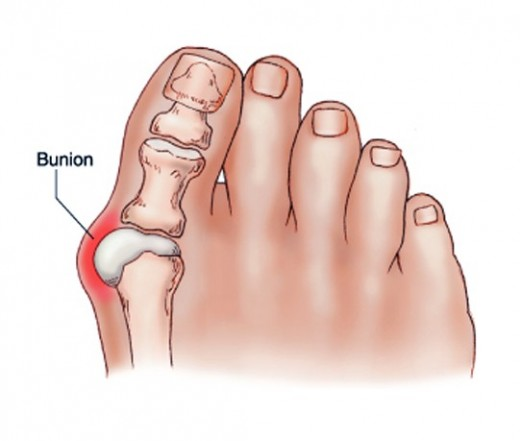 Home Remedies For Bunion