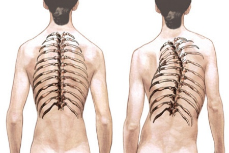 Spondylitis and its simple home remedies