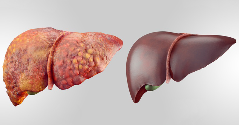 Is Liver detoxification a fact or fad?