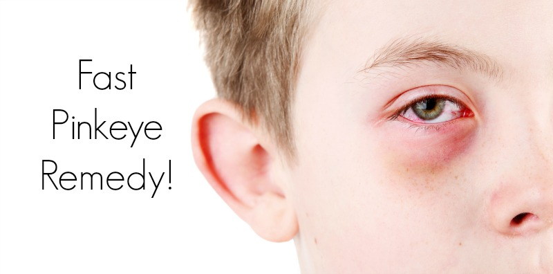 Home Remedies For Pink Eye Conjunctivitis In Children