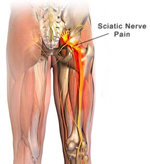 All You Need To Know About Sciatica Click To Read More