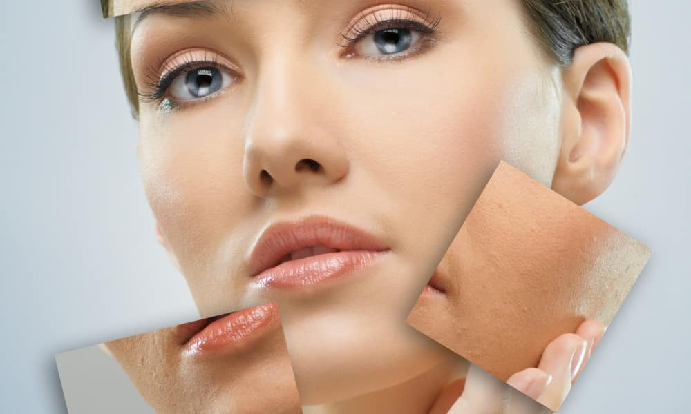 Amazing Supplements That Can Get Rid Of Dark Spots InlifeHealthCare