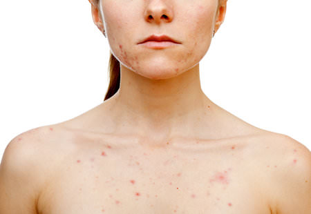 How to get rid of your chest acne?