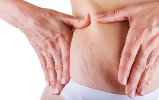 Home Remedies To Get Rid Of Stretch Marks After Pregnancy