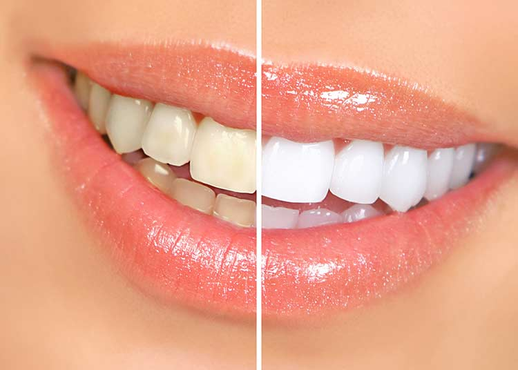 Home Remedies To Whiten Teeth Naturally