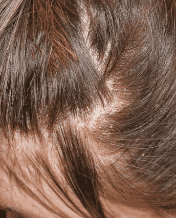Home Remedies For Flaky Scalp