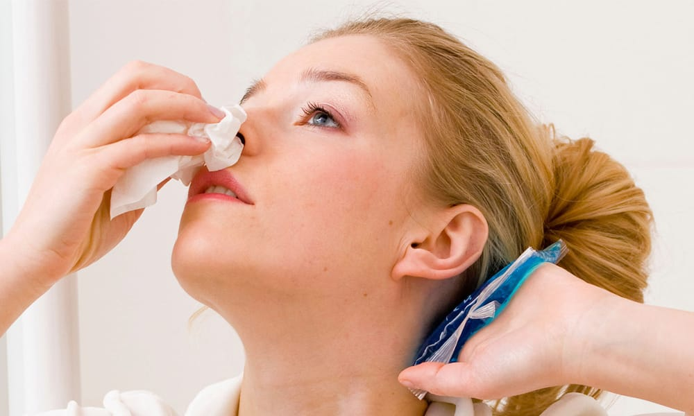 Amazing Home Remedies To Stop Nose Bleeding