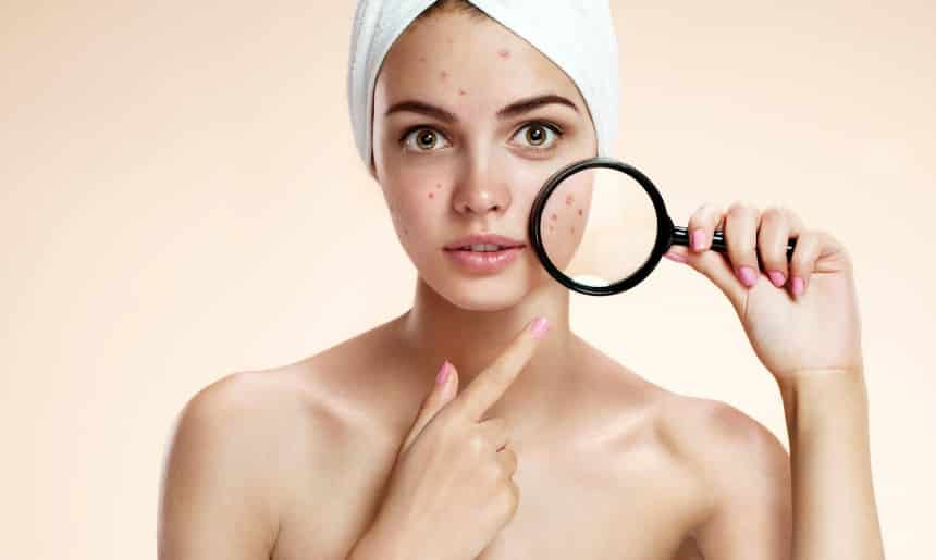 Home Remedies To Treat Acne Scar Permanently