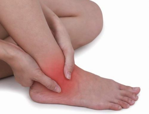 Home Remedies To Treat Edema