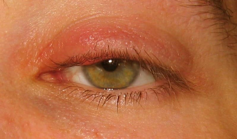 Home Remedies Herpes Eye Infection
