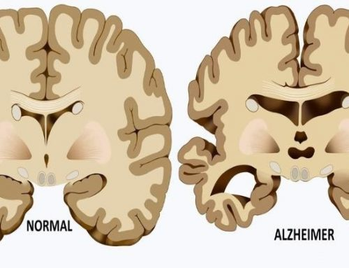 Home Remedies To Treat Alzheimer's Disease
