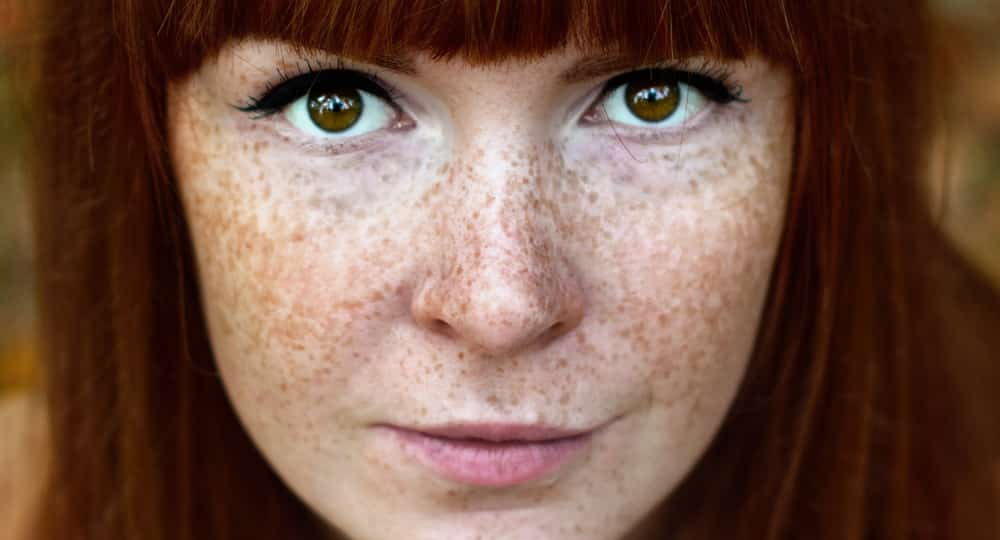 Home Remedies To Treat Freckles