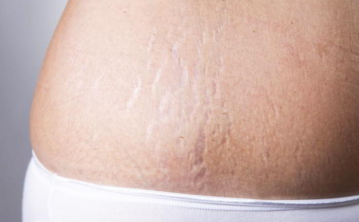 Gets Rid of Stretch Marks