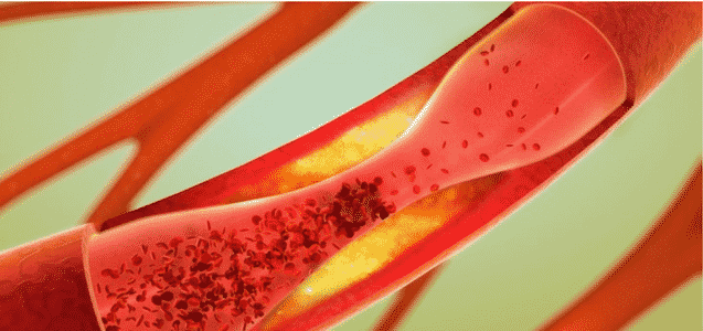 Preventive Role Against Hyperlipidaemia And Coronary Diseases