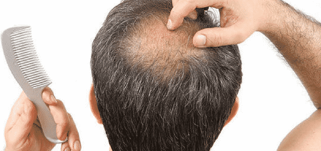 Prevents Premature Baldness
