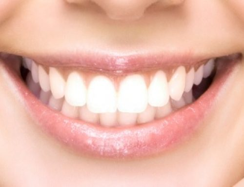 DIY 7 Home Remedies To Whiten Your Teeth Naturally