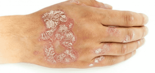 It Helps In Treating Psoriasis
