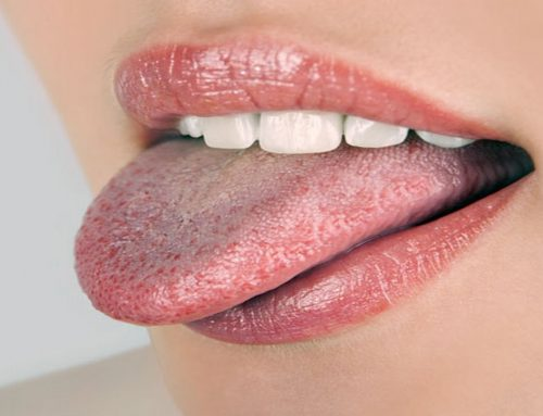 How To Permanently Get Rid Of White Tongue On Your Own ?