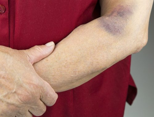 How To Heal Bruises Naturally With Home Remedies?