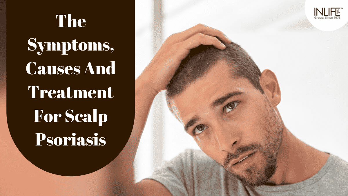 The Symptoms, Causes And Treatment For Scalp Psoriasis